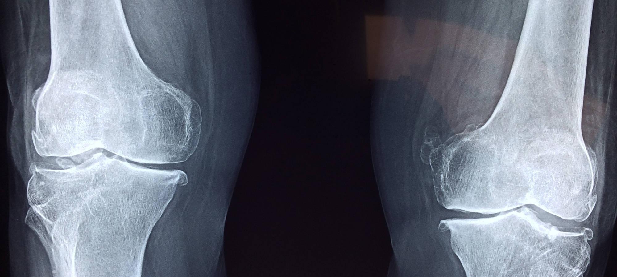 Ein Röntgenbild auf dem zwei Knochen zu sehen sind, © pixabay